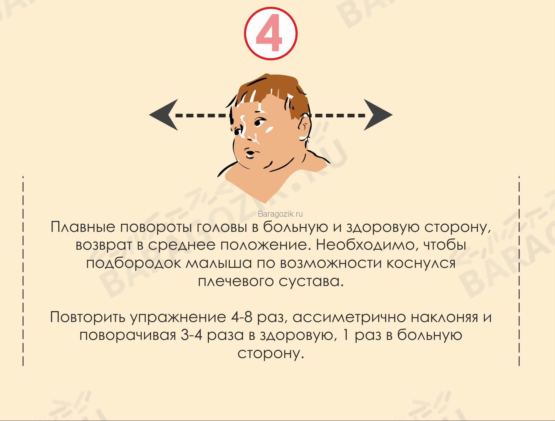 Кривошея у ребенка - упражнение 4