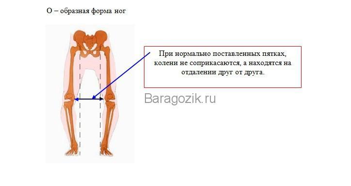 о-образные ножки у ребенка
