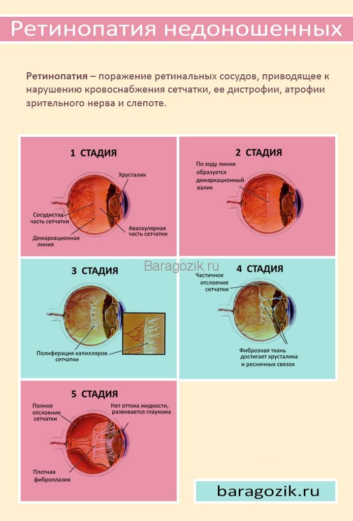 Стадии ретинопатии у недоношенных детей: описание