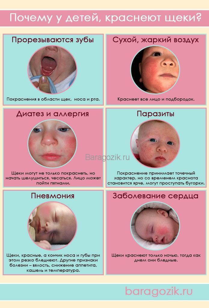 Причины и короткое описание, почему у ребенка покраснели щеки