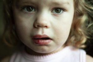 ребенок разбил губу