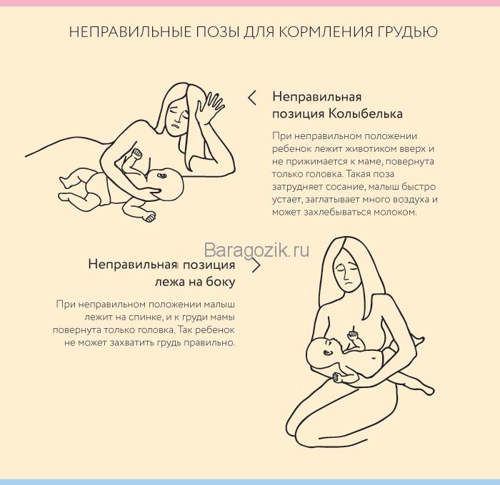 Неправильное прикладывание ребенка к груди