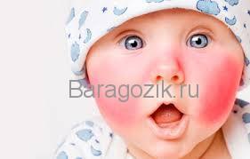 У ребенка появляется диатез