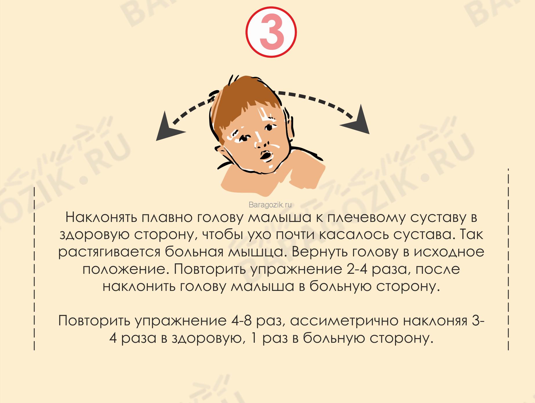 Кривошея у ребенка - упражнение 3