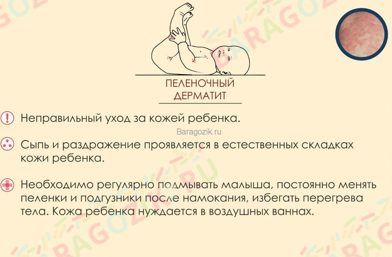 Сыпь при пелёночном дерматите