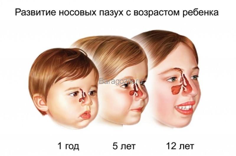 Гайморит у детей - возраст заболевания