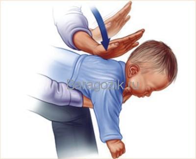 Ребенок подавился - первая помощь ребенку до трех лет