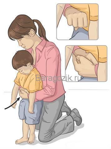 Первая помощь, если ребенок от 3 лет подавился - первая помощь