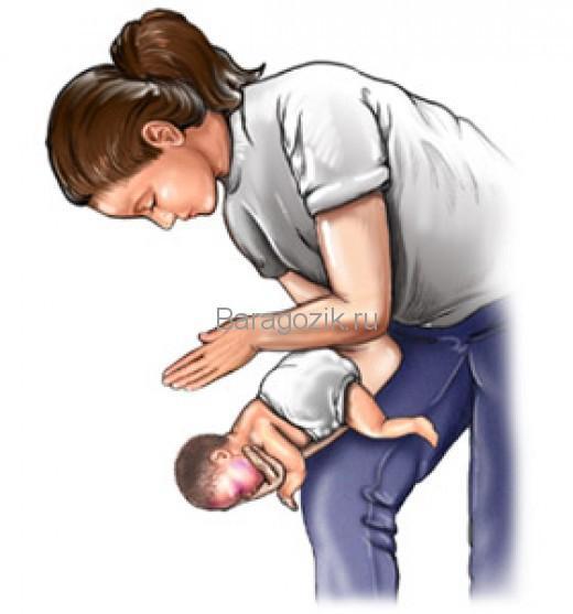 Новорожденный ребенок захлебнулся - первая помощь