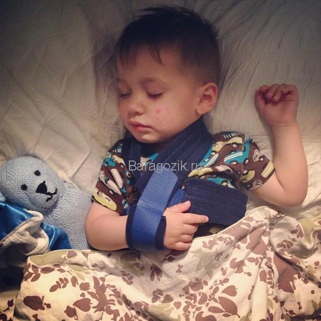 Первая помощь и лечение переломов ключицы у детей