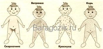 Локализация сыпи при разных инфекционных заболеваниях у детей первых лет жизни