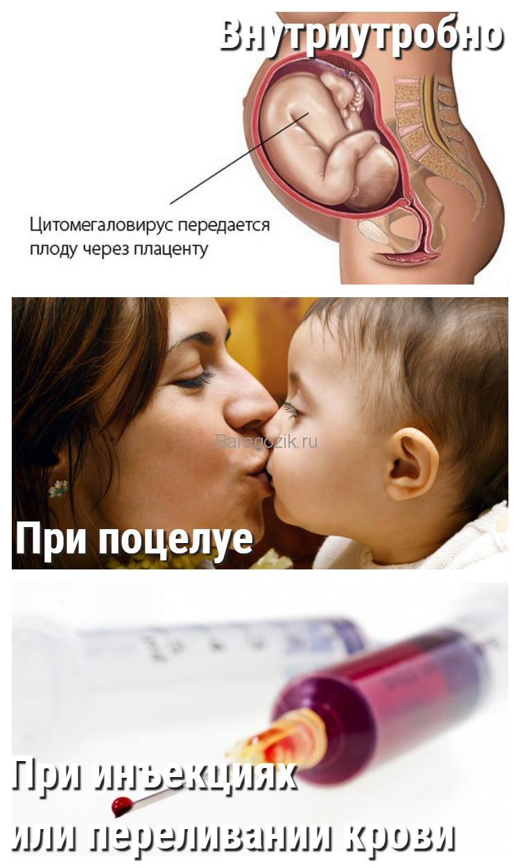 Причины цитомегаловирусной инфекции у ребенка, пути инфицирования