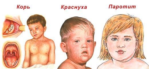 Отличие кори от других заболеваний у детей