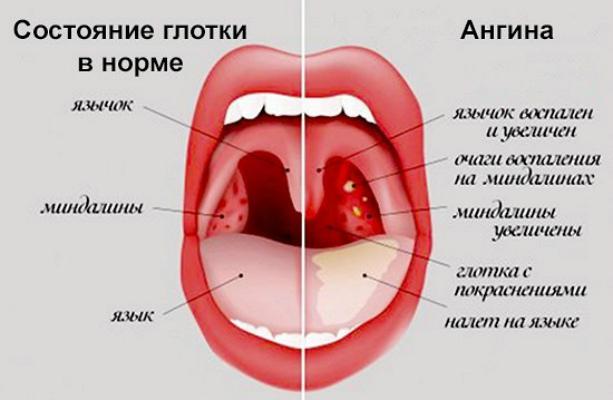 Тонзиллит у детей - признаки и симптомы болезни