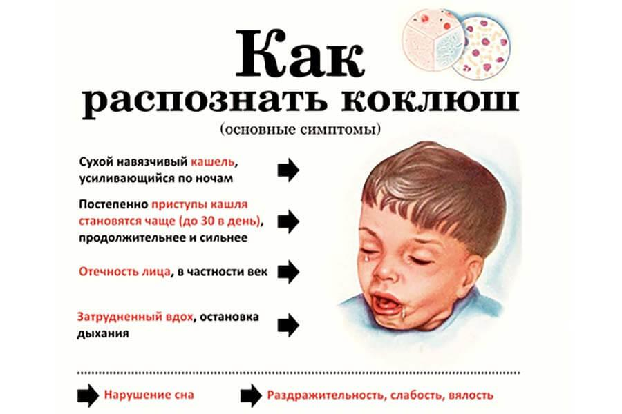 Признаки и симптомы коклюша