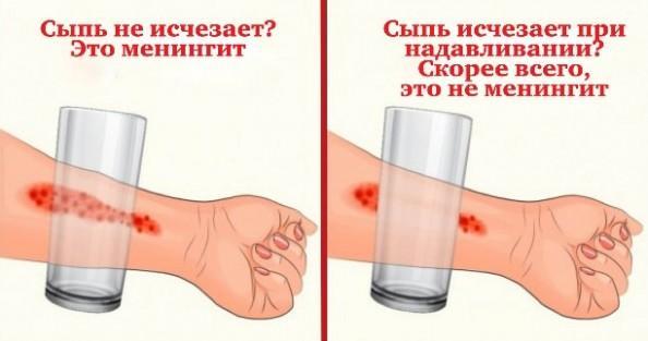 Сыпь при менингите у детей