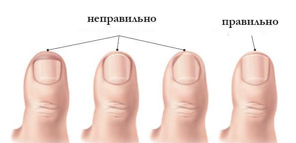 Как и когда можно стричь ногти новорожденному